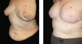 breastrecon-pt6-1c
