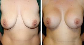 breastrecon_pt5-1