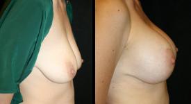 breastrecon_pt5-2