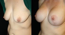 breastrecon_pt5-3