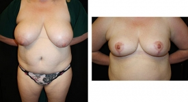 breast-reduction_p1