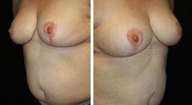 breast-reduction_p2