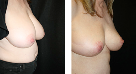 breast_reduction_p1a