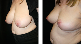 breast_reduction_p1b