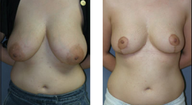 breast_reduction_p2