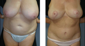 breast_reduction_p3