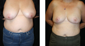 breast_reduction_p4