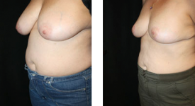 breast_reduction_p4a
