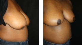 breastreduction-pt7-1b