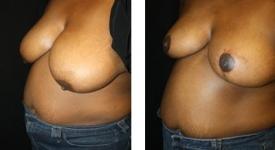 breastreduction-pt7-1c