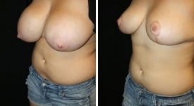 breast_reduction_pt-5-2