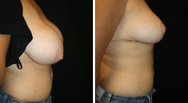 breast_reduction_pt-5-3