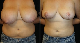 breast_reduction_pt-5