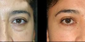 eyelid_p3