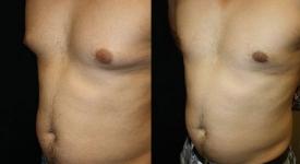 gynecomastia_pt-6-2