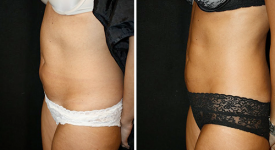 Liposuction_pt2