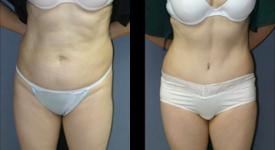 abdominoplasty_p3