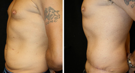 abdominoplasty_p1b