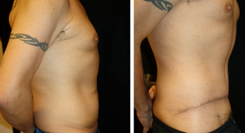 abdominoplasty_p1c