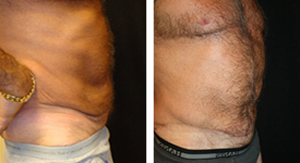 abdominoplasty_p2c