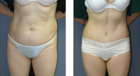 abdominoplasty_p3
