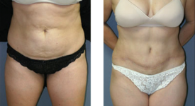 abdominoplasty_p4