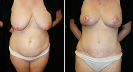 abdominoplasty_pt5