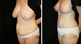 abdominoplasty_pt5a