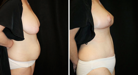 abdominoplasty_pt5b