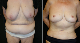 abdominoplasty_pt6