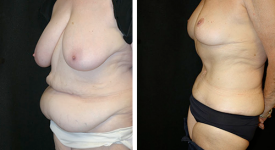 abdominoplasty_pt6a