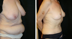 abdominoplasty_pt6b