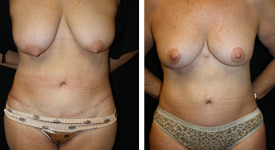 abdominoplasty_pt8a